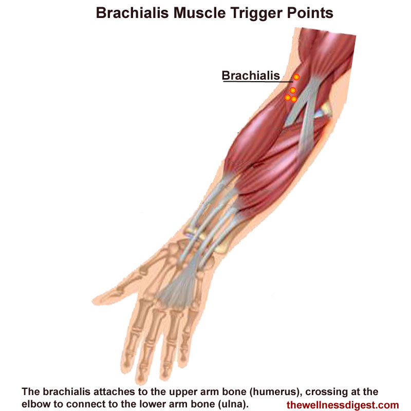 Brachialis Muscle Showing Trigger Point Location