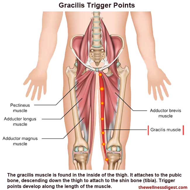 Gracilis Muscle Showing Trigger Point Locations