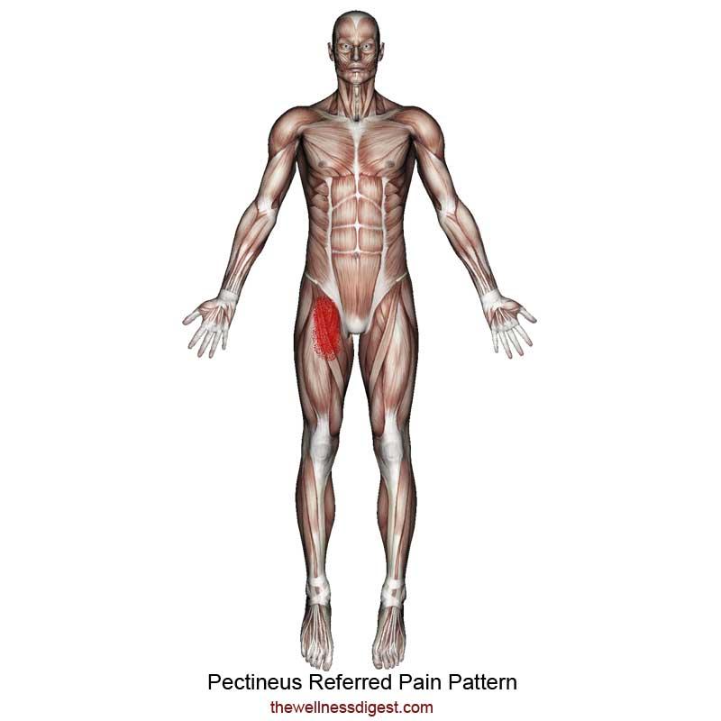 Pectineus Muscle Referred Pain
