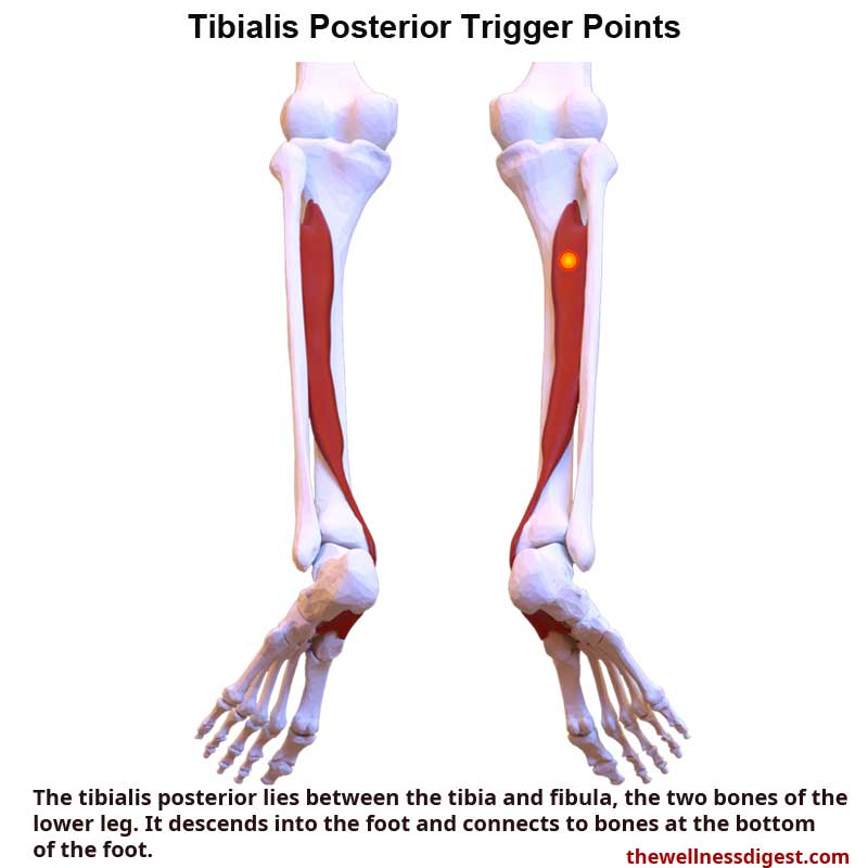 Tibialis Posterior Muscle Showing Trigger Point Location