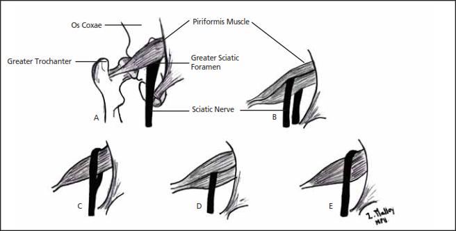 Anatomical Cause of Piriformis Syndrome