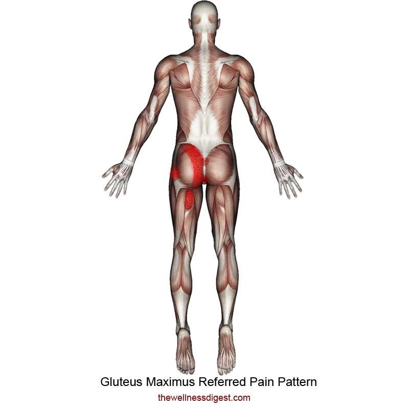 Gluteus Maximus Referred Pain Pattern