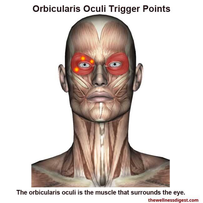 Orbicularis Oculi Muscle Showing Trigger Point Locations