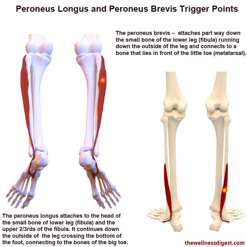 Peroneus Longus and Peroneus Brevis Muscles Showing Trigger Point Locations