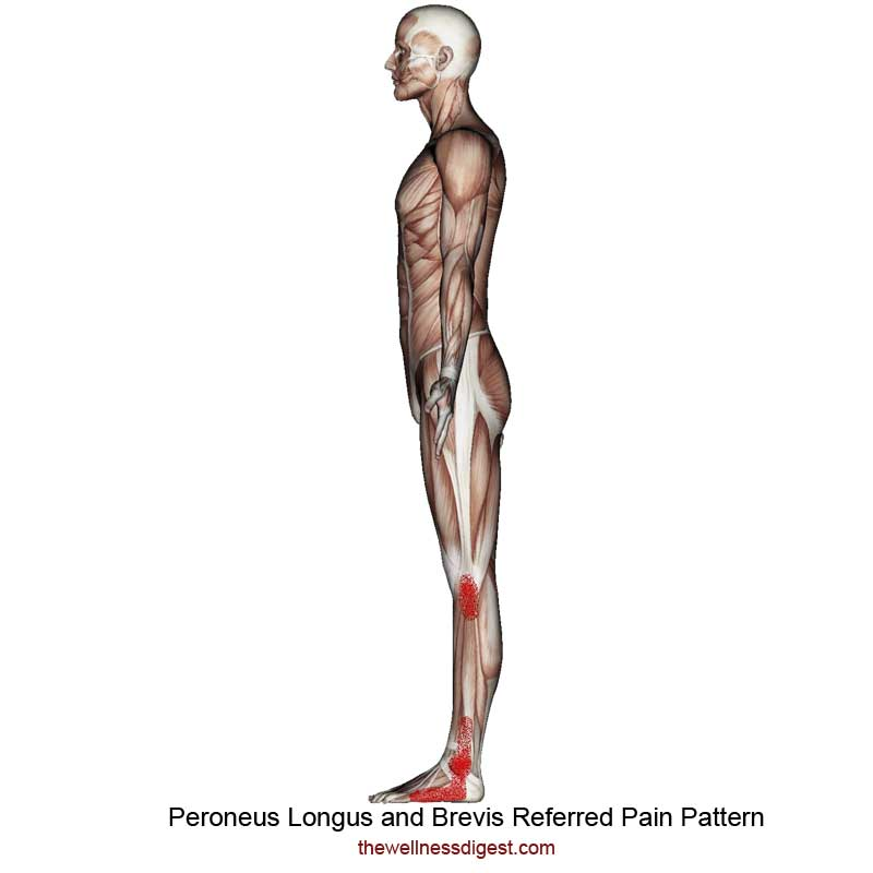 Peroneus Brevis and Peroneus Longus Referred Pain Pattern