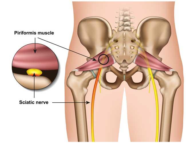 Piriformis Syndrome