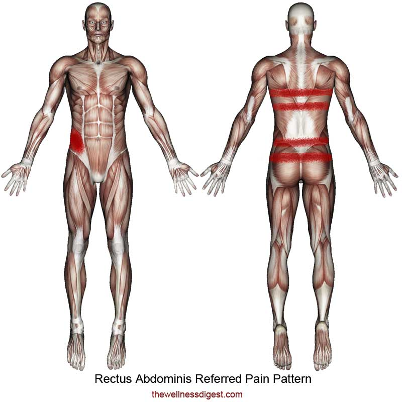 Rectus Abdominis Referred Pain Pattern
