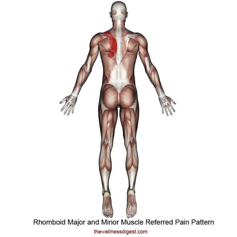 Rhomboid Muscles Referred Pain
