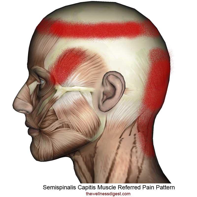 Semispinalis Capitis Referred Pain Pattern