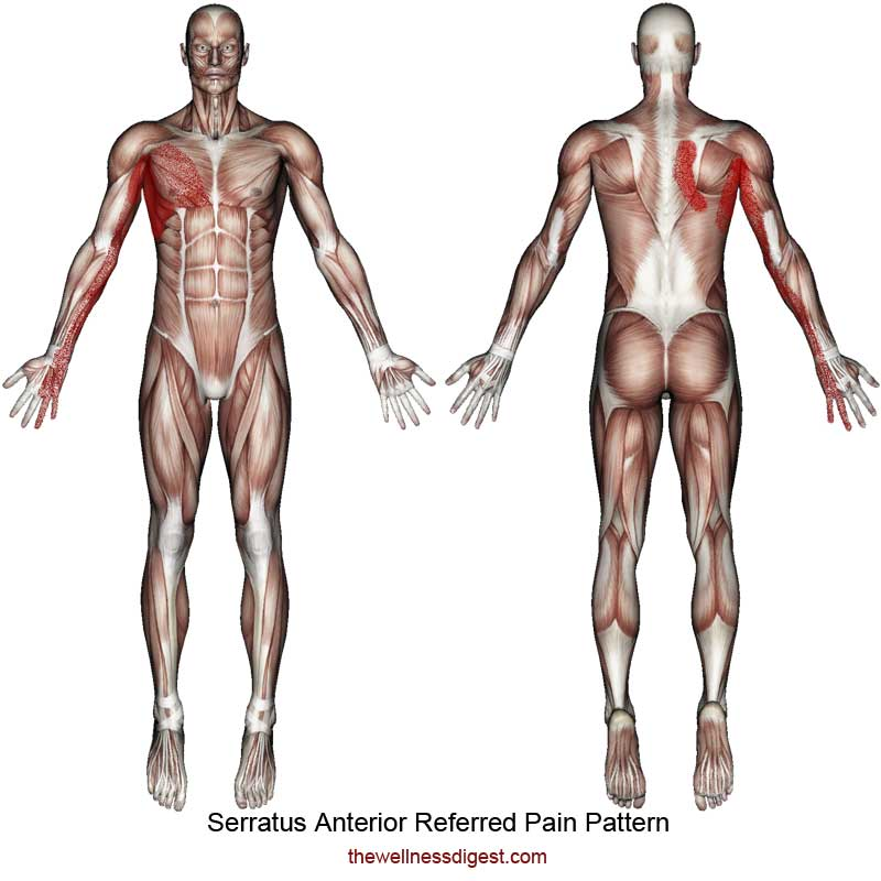 Serratus Anterior Referred Pain Pattern