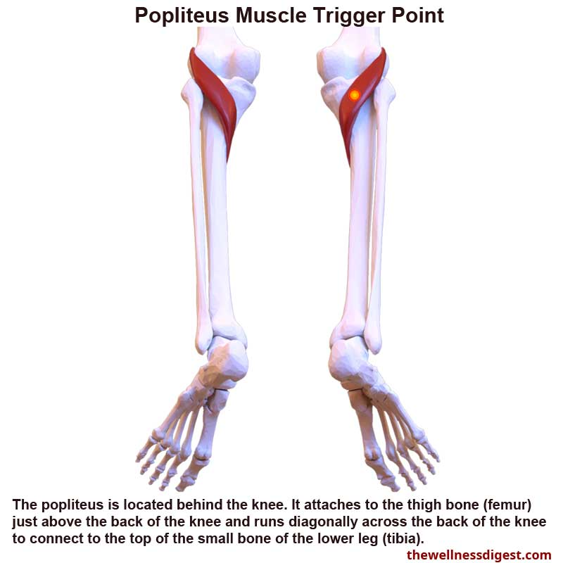 Popliteus Muscle Showing Trigger Point Location