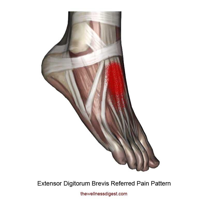 Extensor Digitorum Brevis Pain Pattern