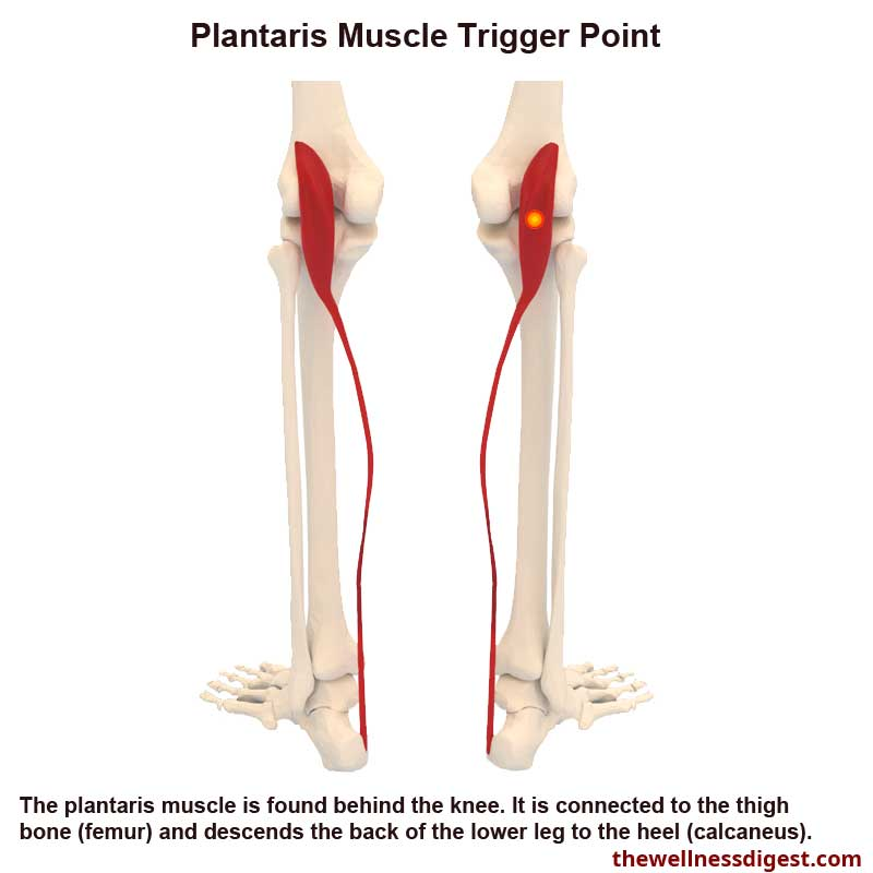 Plantaris Muscle Showing Trigger Point Location