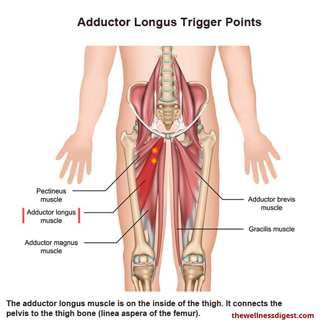 Adductor Longus Muscle Showing Trigger Point Locations