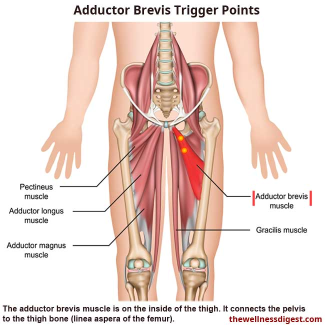 Adductor Brevis Muscle Showing Trigger Point Locations