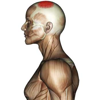 Splenius Capitis Muscle: Pain At The Top Of The Head