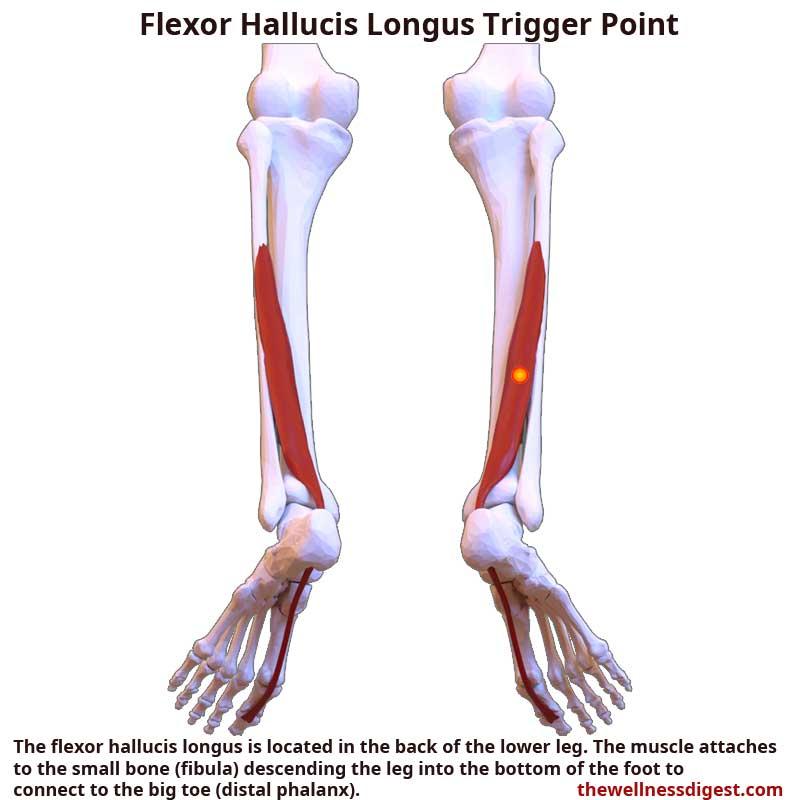 Flexor Hallucis Longus Muscle Showing Trigger Point Location