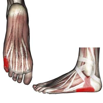 Abductor Digiti Minimi Muscle: Heel and Ankle Pain