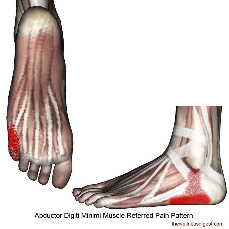 Abductor Digiti Minimi Foot Referred Pain Pattern