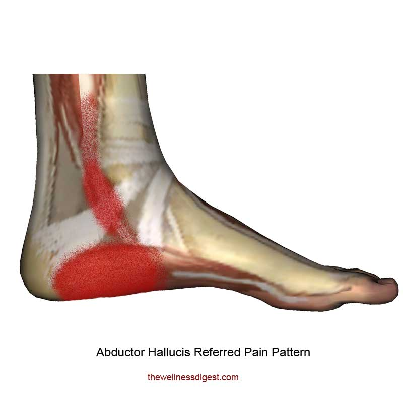 Abductor Hallucis Referred Pain Pattern