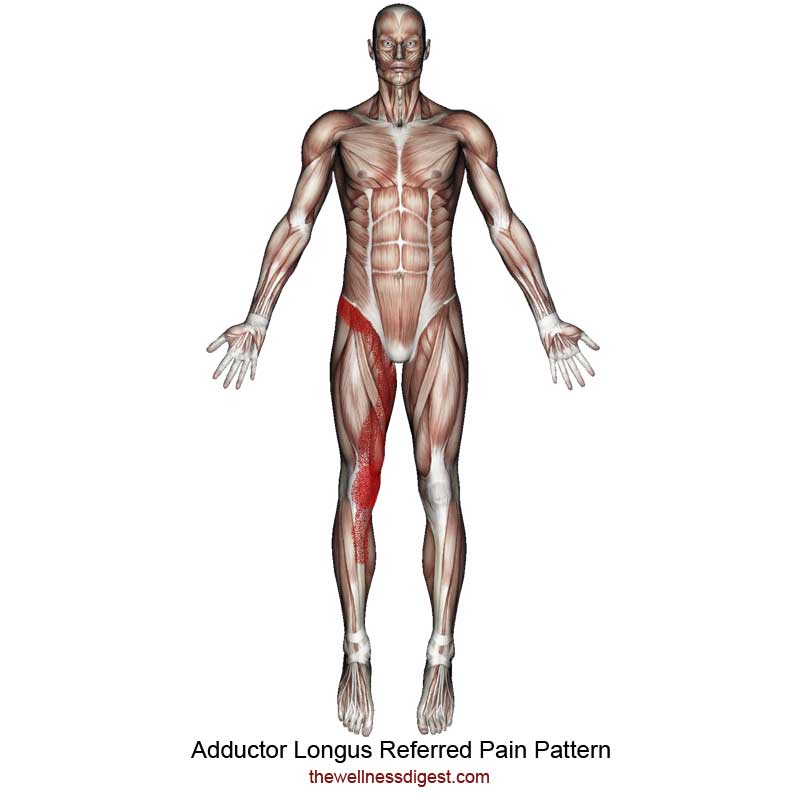 Adductor Longus Referred Pain Pattern