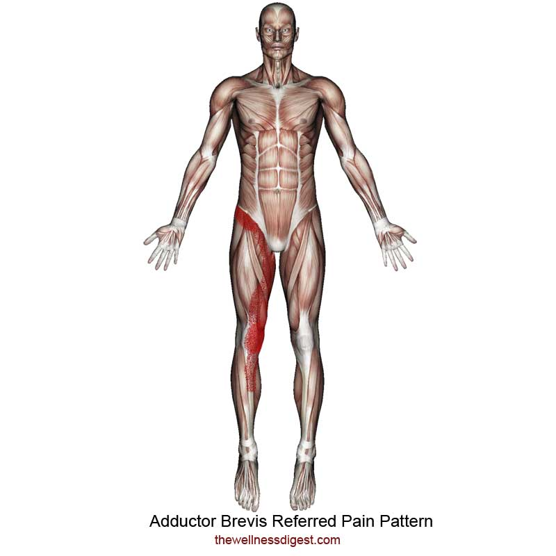 Adductor Brevis Referred Pain