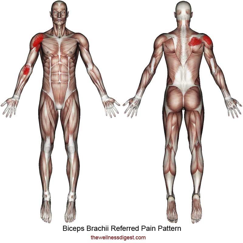 Biceps Brachii Referred Pain Pattern