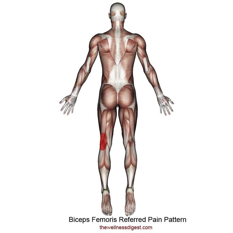Biceps Femoris Referred Pain Pattern