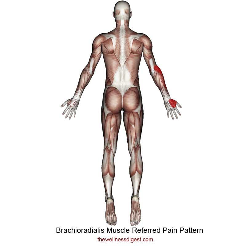 Brachioradialis Referred Pain Pattern