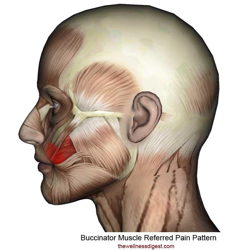 Buccinator Pain Pattern