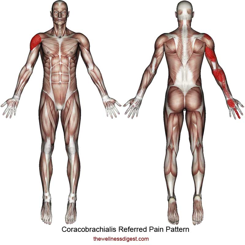 Coracobrachialis Referred Pain Pattern