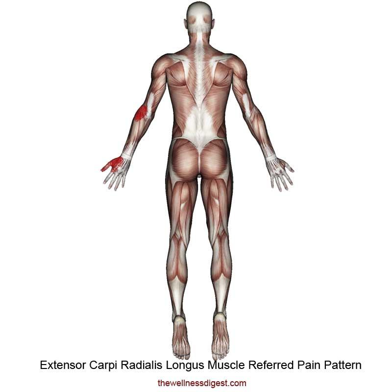 Extensor Carpi Radialis Longus Referred Pain Pattern