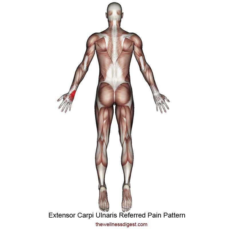 Extensor Carpi Ulnaris Referred Pain Pattern