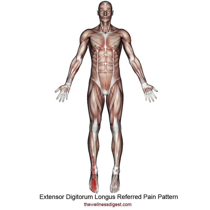 Extensor Digitorum Longus Referred Pain Pattern