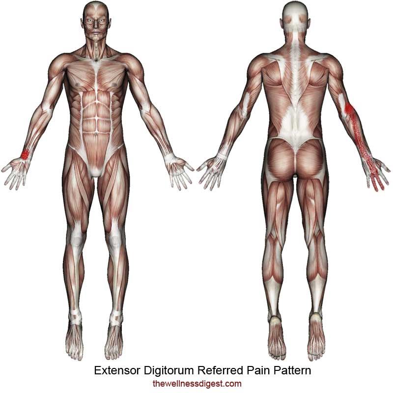 Extensor Digitorum Referred Pain Pattern