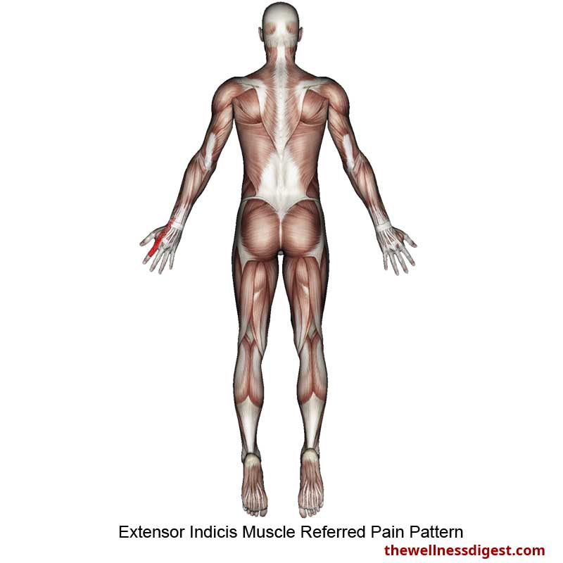 Extensor Indicis Referred Pain Pattern