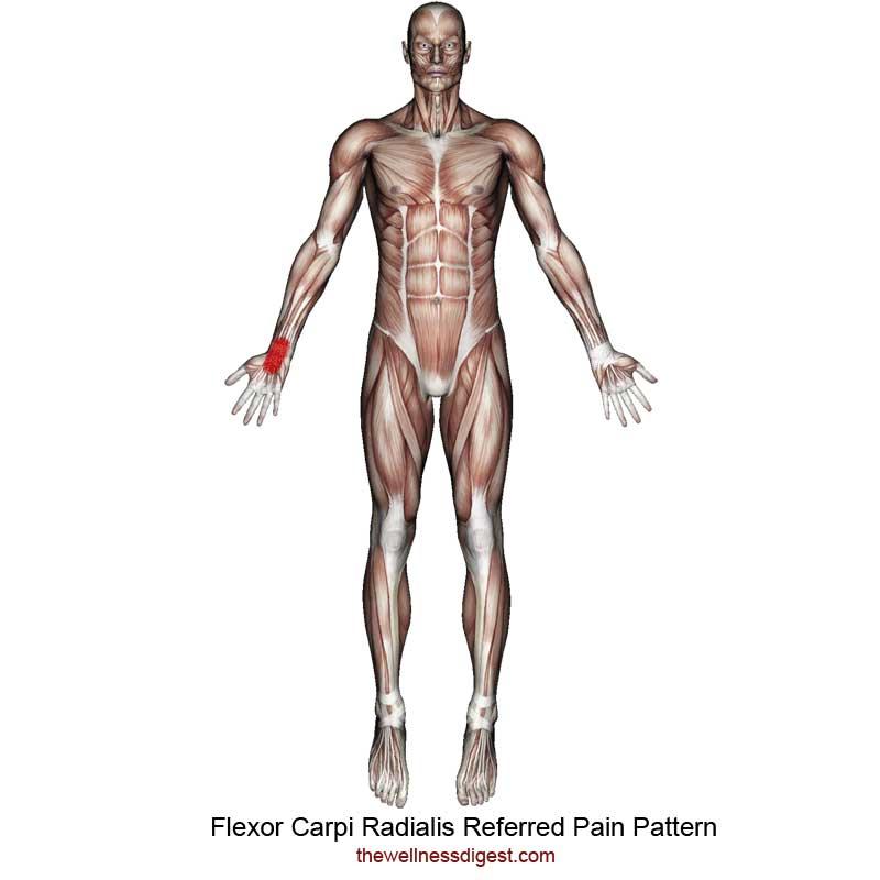 Flexor Carpi Radialis Referred Pain Pattern