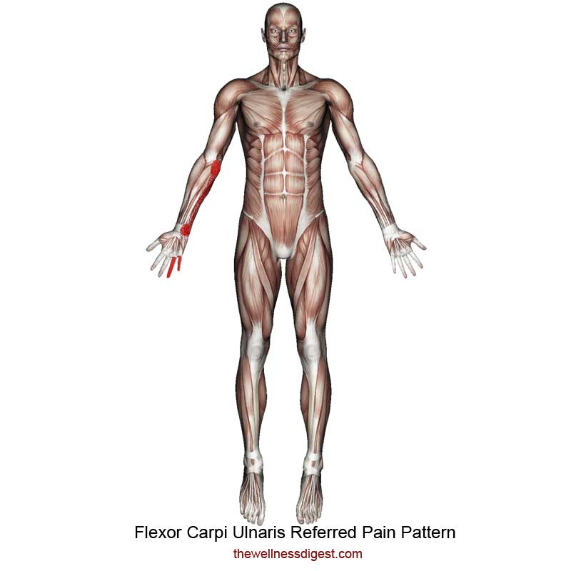 Flexor Carpi Ulnaris Referred Pain Pattern