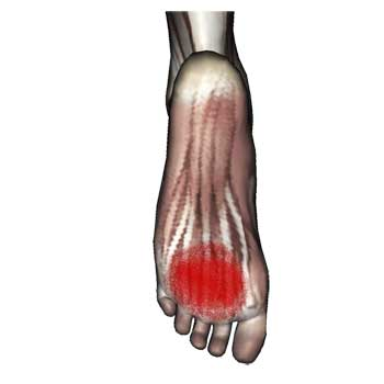 Flexor Digitorum Brevis Muscle: Pain In The Ball of Foot