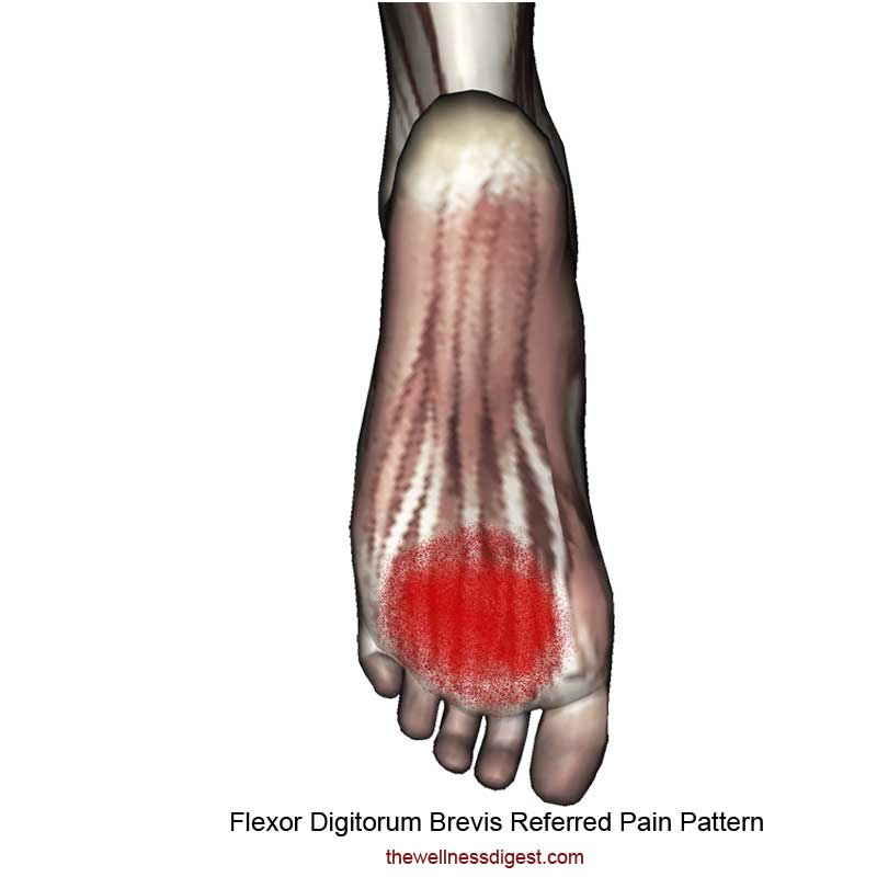 Flexor Digitorum Brevis Pain Pattern