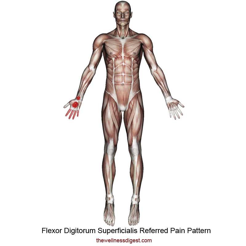 Flexor Digitorum Superficialis Referred Pain Pattern