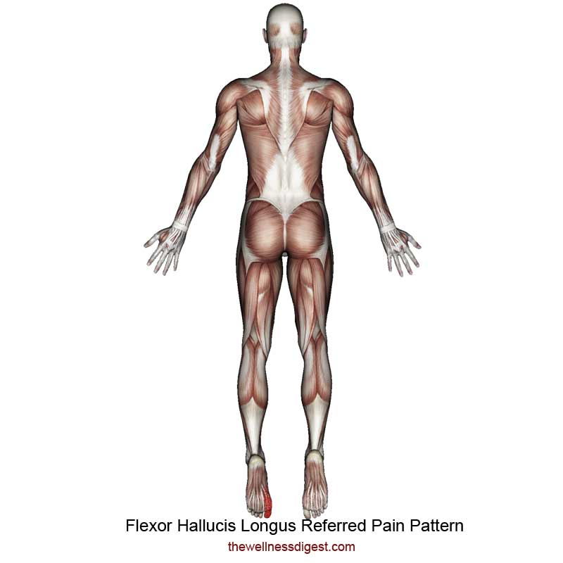 Flexor Hallucis Longus Referred Pain Pattern