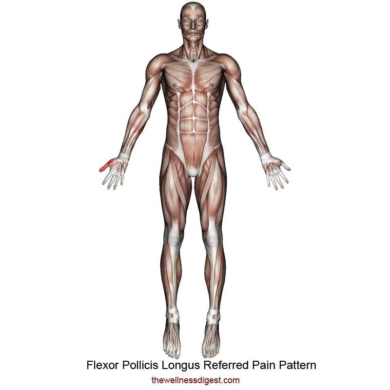 Flexor Pollicis Longus Referred Pain Pattern
