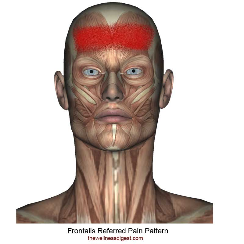 Frontalis Muscle Pain Pattern