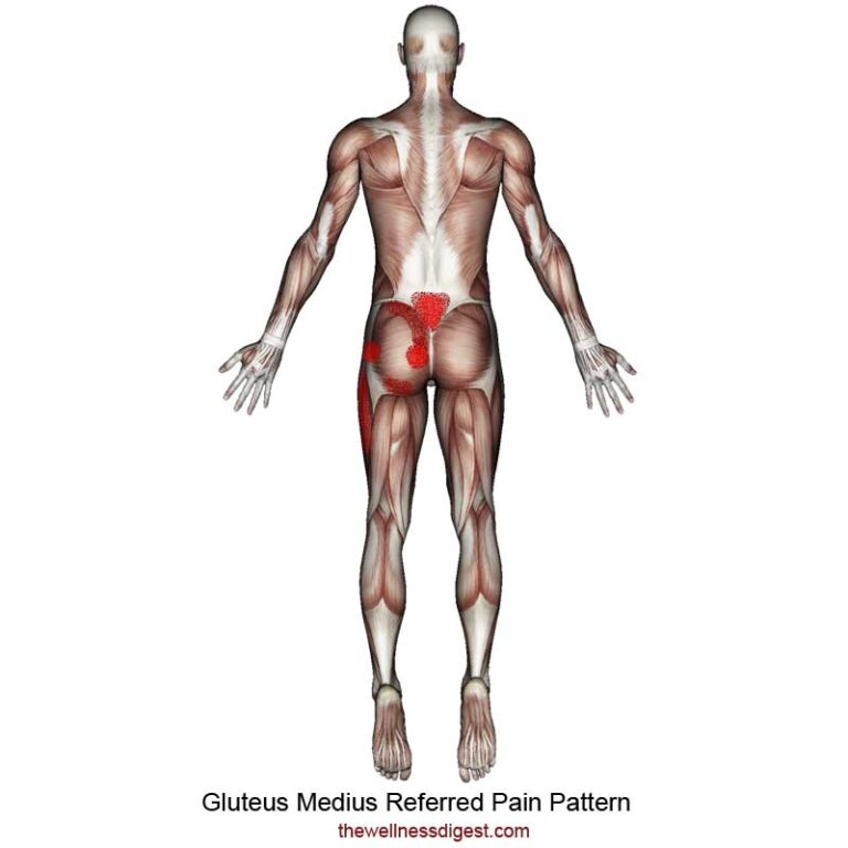 Gluteus Medius Muscle: Outside of Hip, Buttock, Low Back Pain