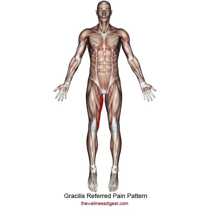 Gracilis Referred Pain Pattern