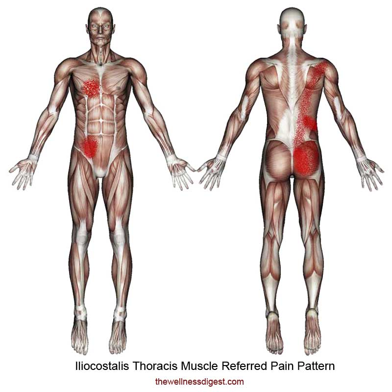 Iliocostalis Thoracis Referred Pain Pattern