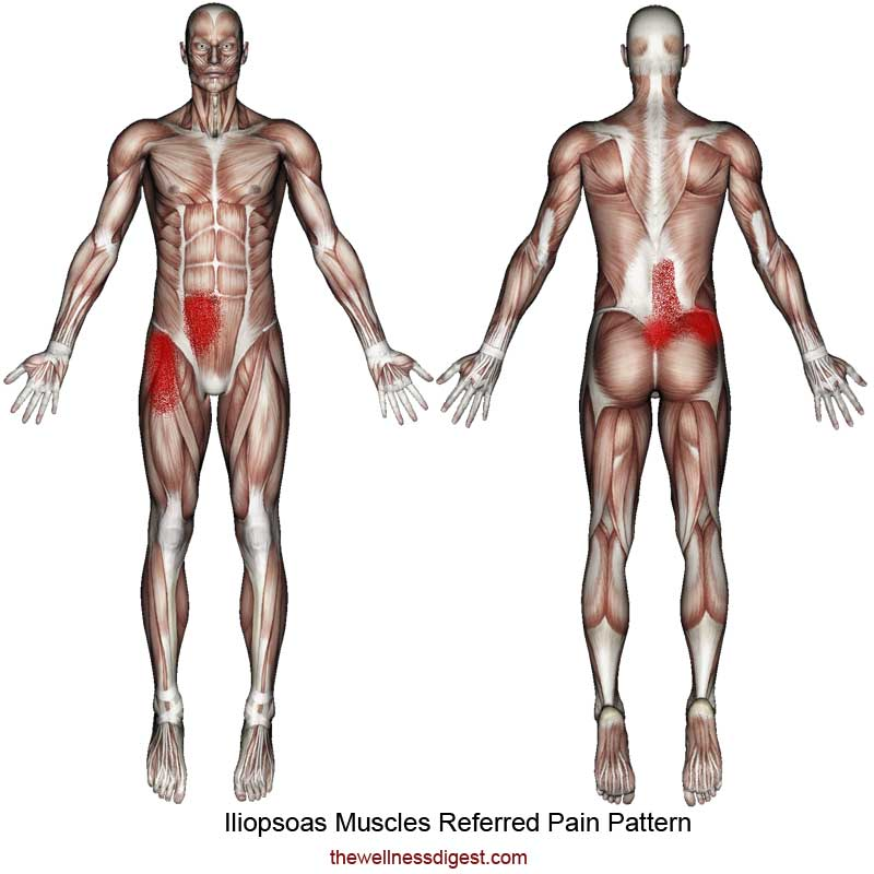 Iliopsoas Referred Pain Pattern