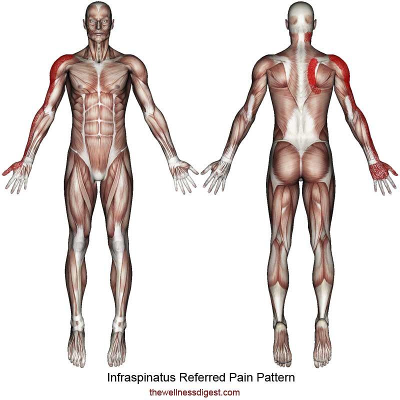 Infraspinatus Referred Pain Pattern