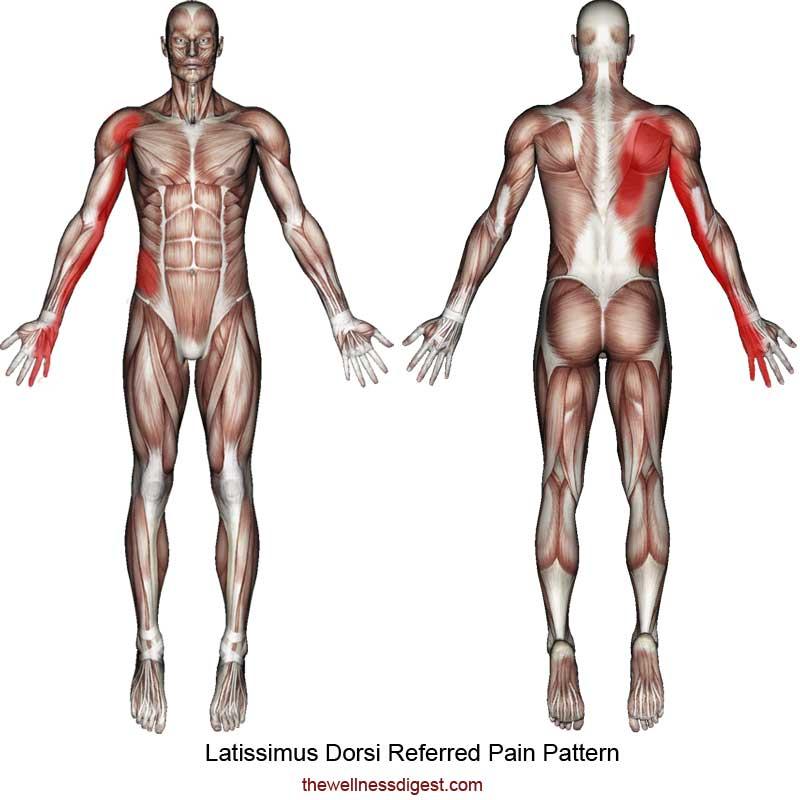 Latissimus Dorsi Referred Pain Pattern